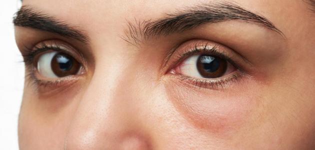 الانتفاخ حول العيون
